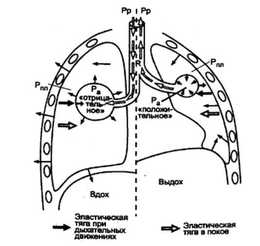 Схема изменения плеврального